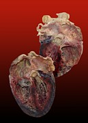 Grey Background Photos - Dissected Human Heart by Victor Habbick Visions