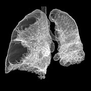 3-d Posters - Emphysema Of The Lungs, Ct Scan Poster by Du Cane Medical Imaging Ltd