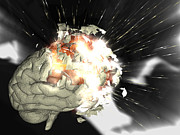 Mental Condition Posters - Exploding Brain Poster by Christian Darkin