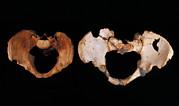 Fossilised Pelvis, Sima De Los Huesos Print by Javier Truebamsf