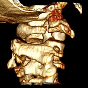 C1 Photos - Fractured Atlas Vertebra, 3d Ct Scan by Du Cane Medical Imaging Ltd