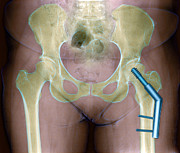 Repaired Photo Posters - Fractured Femur Poster by Du Cane Medical Imaging Ltd
