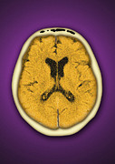 Brain Scan Prints - Healthy Brain, Ct Scan Print by Miriam Maslo