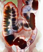 Healthy Large Intestine, Barium X-ray Print by