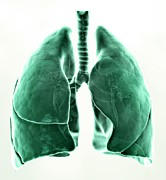 Art Product Prints - Healthy Lungs, Artwork Print by Andrzej Wojcicki