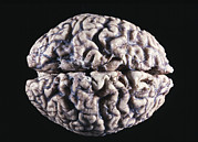 Gross Framed Prints - Human Brain Framed Print by Cnri