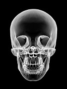 Frontal Bones Framed Prints - Human Skull, X-ray Artwork Framed Print by Pasieka