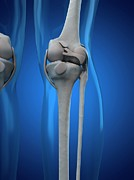 Human Joint Digital Art - Knee Anatomy, Artwork by Sciepro