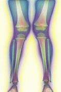 Knock Knock Framed Prints - Knock-knee, X-ray Framed Print by Cnri