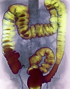 Rectum Prints - Large Intestine, X-ray Print by Cnri
