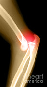 Injury Posters - Lateral X-ray Of The Elbow Poster by Medical Body Scans
