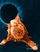 Cellular Prints - Metastasis Print by Science Source