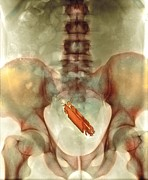 Prank Prints - Mobile Phone In A Persons Rectum, X-ray Print by