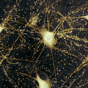 Neurons Photo Framed Prints - Motor Neurons, Light Micrograph Framed Print by Steve Gschmeissner