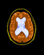 Color Enhanced Framed Prints - Mri Communicating Hydrocephalus Nph Framed Print by Medical Body Scans