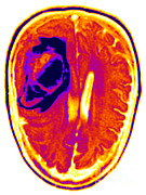 Brain Prints - Mri Of Head Injury Print by Ted Kinsman