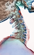 Cervical Vertebrae Posters - Neck Vertebrae Flexed, X-ray Poster by