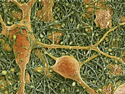 Neuroglia Cell Framed Prints - Nerve Cells And Glial Cells, Sem Framed Print by Thomas Deerinck, Ncmir