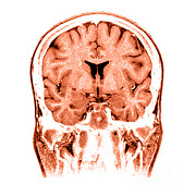 Cerebrum Posters - Normal Coronal Mri Of The Brain Poster by Medical Body Scans
