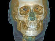 Human Head Art - Normal Head, Cone Beam Ct Scan by Demetrios Halzonetis