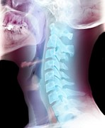 Vocal Prints - Normal Neck, X-ray Print by Du Cane Medical Imaging Ltd
