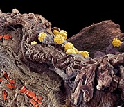 Cells Art - Pyoderma Skin Disease, Sem by Steve Gschmeissner