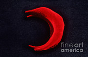Sickle Framed Prints - Sickle Cell Anemia Framed Print by Omikron