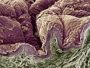Skin Tissue, Sem Print by Steve Gschmeissner