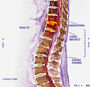 Disc Photos - Spinal Cord Stroke, Mri Scan by