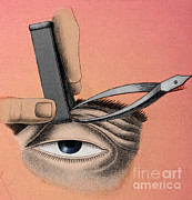 Drooping Posters - Surgery To Correct Lazy Eyelid, 1830 Poster by Photo Researchers