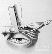 Drooping Posters - Surgery To Correct Lazy Upper Eyelid Poster by Science Source