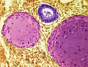 Art Product Prints - Testicular Cancer, Light Micrograph Print by Steve Gschmeissner