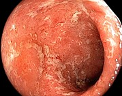 Inflamed Wall Photos - Ulcerative Colitis In The Rectum by Gastrolab