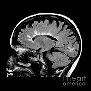 Multiple Sclerosis Posters - Mri Of Multiple Sclerosis Poster by Medical Body Scans