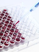 Analysis Prints - Blood Samples Print by Tek Image