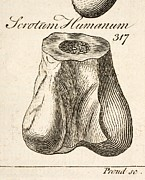 Scrotum Framed Prints - 1763 Dinosaur Bone Misidentified Scrotum Framed Print by Paul D Stewart