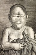 Naturelle Prints - 1777 Buffon Cyclopia Congenital Disorder. Print by Paul D Stewart
