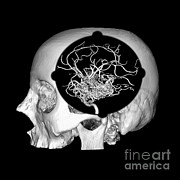 Brain Surgery Prints - 3d Image Of Skull And Brain Avm Print by Medical Body Scans
