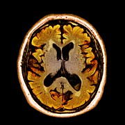 Dementia Prints - Alcoholic Dementia, Mri Scan Print by Du Cane Medical Imaging Ltd