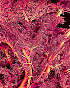 Sem Prints - Blood Vessels, Sem Print by Susumu Nishinaga
