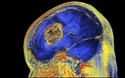 3-dimensional Framed Prints - Brain Tumour, 3-d Mri Scan Framed Print by Pasieka