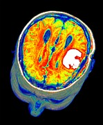 Imaging Photos - Brain Tumour, 3d-mri Scan by Pasieka