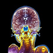 Brain Scan Prints - Childs Brain, Mri Scan Print by Du Cane Medical Imaging Ltd