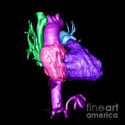 3d Imaging Framed Prints - Color Enhanced 3d Cta Of Heart Framed Print by Medical Body Scans