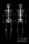Scans Prints - Compression Fracture Print by Medical Body Scans