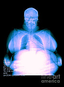 Excessive Framed Prints - Digital X-ray Of Obesity Framed Print by Medical Body Scans