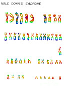 Syndrome Photos - Downs Syndrome Karyotype by Omikron