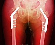 Fixed Art - Fixed Double Hip Fracture (image 2 Of 2) by Du Cane Medical Imaging Ltd