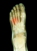 Injury Posters - Fractured Foot, X-ray Poster by Du Cane Medical Imaging Ltd