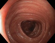 Endoscope View Photos - Healthy Colon (large Intestine) by Gastrolab